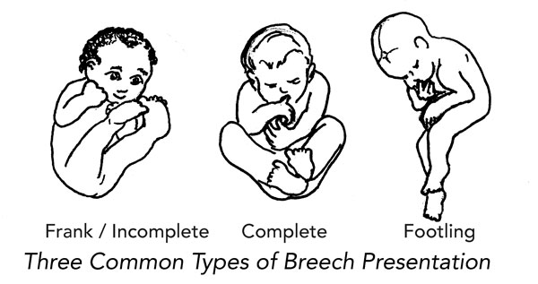 Flip A Breech - How to Turn a Breech Baby - Spinning Babies